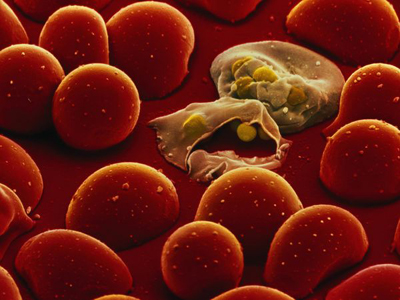 malaria_parasites and red blood cells