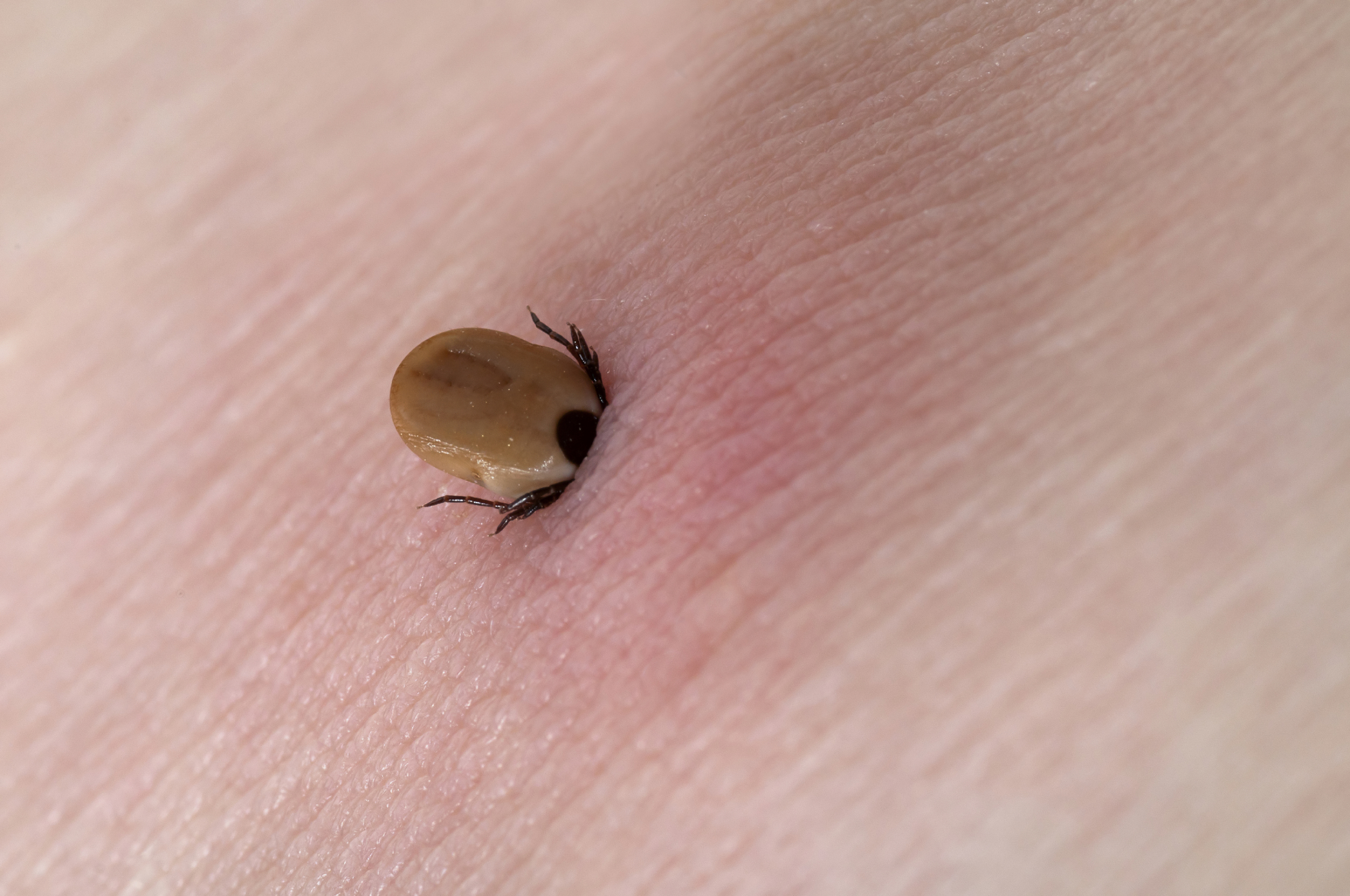 Tick Pictures, Removal, Bite Treatment and Prevention